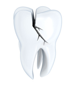 Dental crowns in Cherry Hill require impressions to be made.