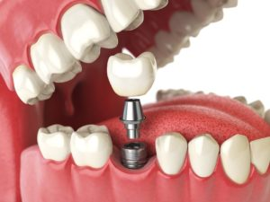 Dental implant for premolar