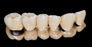 tooth colored porcelain dental bridge